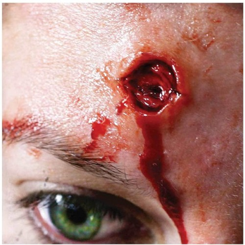 Trucco ferita sanguinosa 3D, cicatrice con sangue